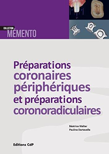 Les prparations coronaires priphriques et prparations corono-radiculaires: Avec 4 vidos en complment sur le web !