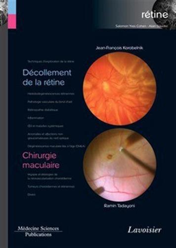Rétine : Volume 6, Décollement de la rétine ; Chirurgie maculaire