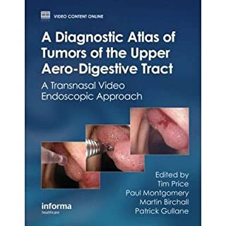 [(A Diagnostic Atlas of Tumors of the Upper Aero-Digestive Tract: A Transnasal Video Endoscopic Approach)] [Author: Paul Montgomery] published on (April, 2012)
