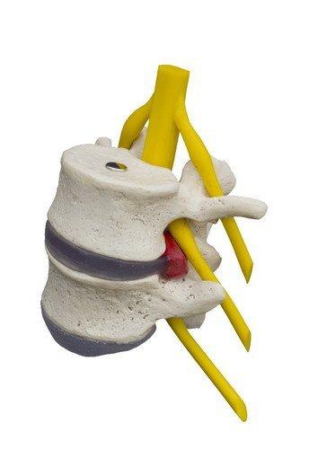 Ruediger Anatomie A208.1 Hernie-Modell, 2 Wirbel mit Vorfall, ohne Sockel