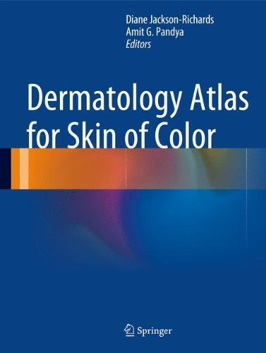Dermatology Atlas for Skin of Color by (2014-07-20)