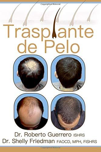 Trasplante De Pelo por Dr. Roberto Guerrero
