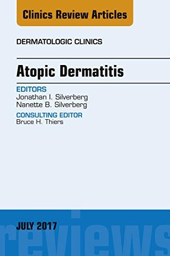 Atopic Dermatitis, An Issue Of Dermatologic Clinics, E-book (the Clinics: Dermatology) por Jonathan I. Silverberg epub