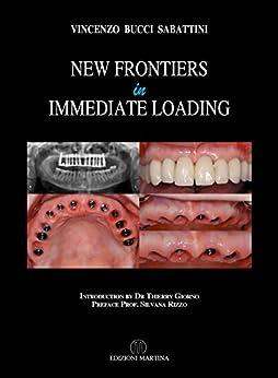 New Frontiers In Immediate Loading (English Edition) di [Bucci Sabattini, Vincenzo]