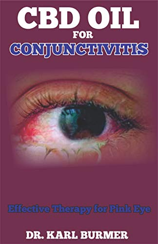CBD OIL FOR CONJUNCTIVITIS: Effective Therapy for Pink Eye (English Edition)