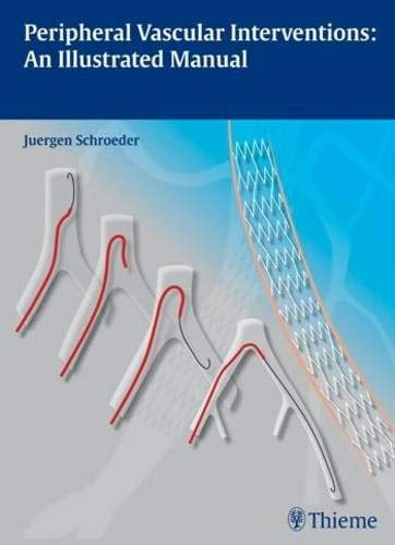 Peripheral Vascular Interventions: An Illustrated Manual - Pädiatrische Herz