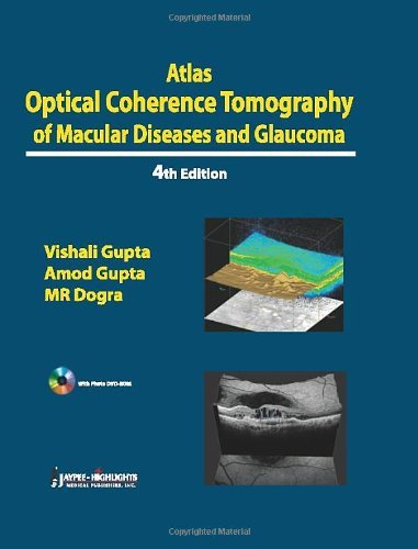 Atlas Optical Coherence Tomography of Macular Diseases and Glaucoma by Mangat Ram Dogra (2012-06-30)