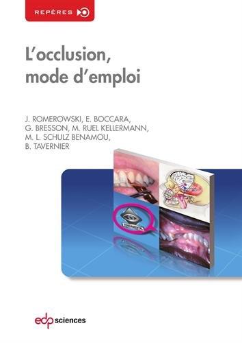 L'occlusion, mode d'emploi