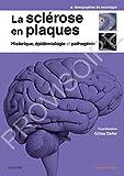 La sclérose en plaques - Historique, épidémiologie et pathogénie: Epidemiol Et Pathogenie