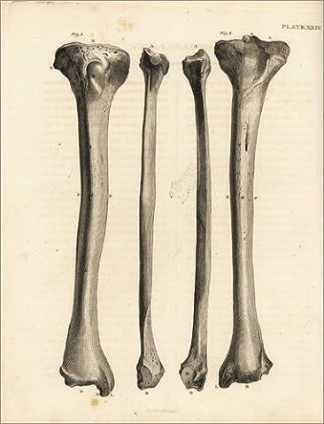 Forex-Platte 100 x 130 cm: Tibia Knochen im menschlichen Bein von Jean Joseph Sue / Fotofinder.com