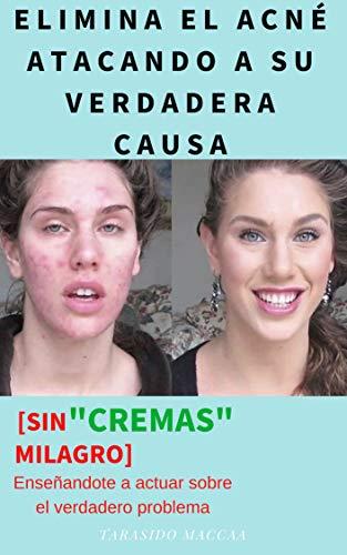 "ELIMINA EL ACNÉ ATACANDO A SU VERDADERA CAUSA: [SIN CREMAS ""MILAGRO""] Aquí te enseño a actuar sobre el verdadero problema que causa el acné"