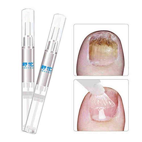 Acealto Solución de cuidado de uñas Reparación de uñas Inhibición de infecciones fúngicas Producto para el tratamiento de hongos en las uñas de los pies