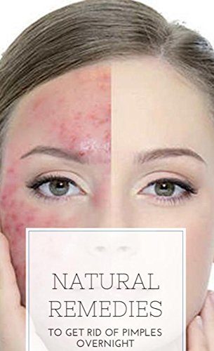 Natural Remedies To Get Rid Of Pimples Overnight Ebook Acerno