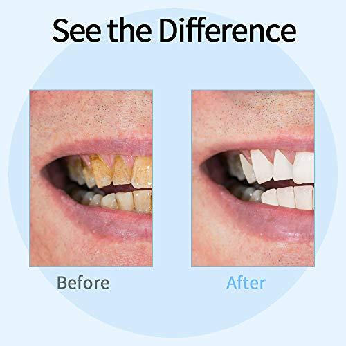 Sarro Dental, Xpreen limpieza dental kit Mancha Dientes Eliminación Eliminar Dientes Placa, Cálculo Dientes, manchas dientes y café y Té 3 modos, 2 Cabezas Reemplazables y luz led, USB cargado