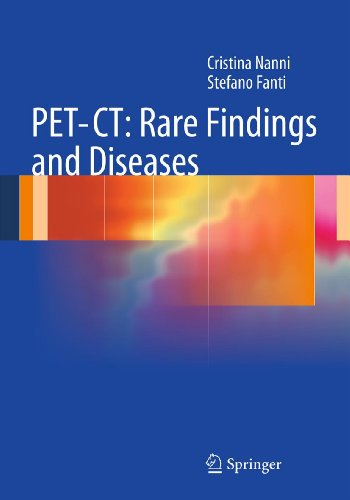 PET-CT: Rare Findings and Diseases (English Edition)