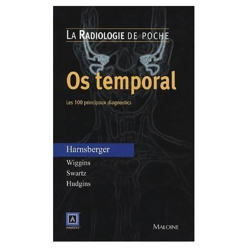 Os temporal : Les 100 principaux diagnostics