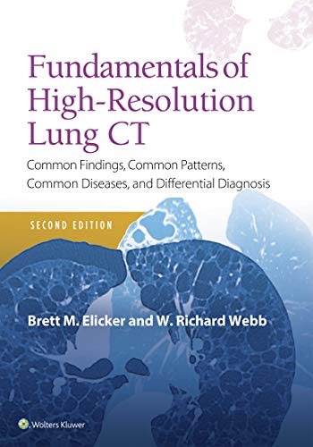 Fundamentals of High-Resolution Lung CT: Common Findings, Common Patterns, Common Diseases and Differential Diagnosis (Pocket Notebook) (English Edition)
