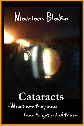 Cataracts: What are they and how to get rid of them? (Your Eyes Book 2) (English Edition)