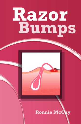 Razor Bumps (Prevent Bikini Area Razor Bumps,Treat Ingrown Hair and After Shave Bumps Book 1) (English Edition)