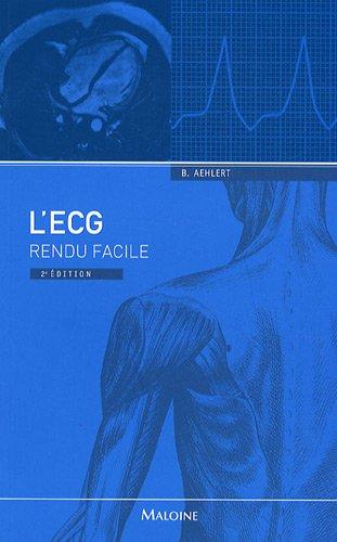 L'ECG rendu facile