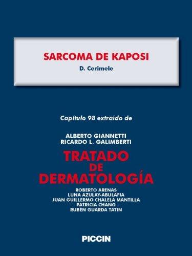 Capítulo 98 extraído de Tratado de Dermatología - SARCOMA DE KAPOSI por A.Giannetti