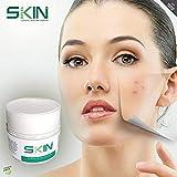 Skinapeel Anti-Falten-Creme, 50 ml, Feuchtigkeitscreme und regenerative Feuchtigkeitscreme, pflegt Ihre Haut und bekämpft Akne bei Tag und Nacht