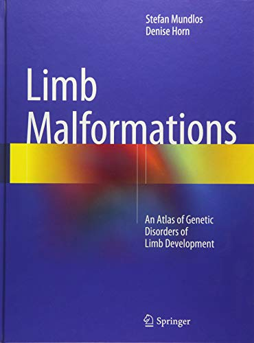 Limb Malformations: An Atlas of Genetic Disorders of Limb Development