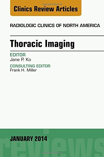 Thoracic Imaging, An Issue of Radiologic Clinics of North America, 1e (The Clinics: Radiology) by Jane P. Ko MD (2014-01-16)