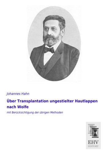 Ueber Transplantation ungestielter Hautlappen nach Wolfe: mit Beruecksichtigung der uebrigen Methoden (Hautlappen)