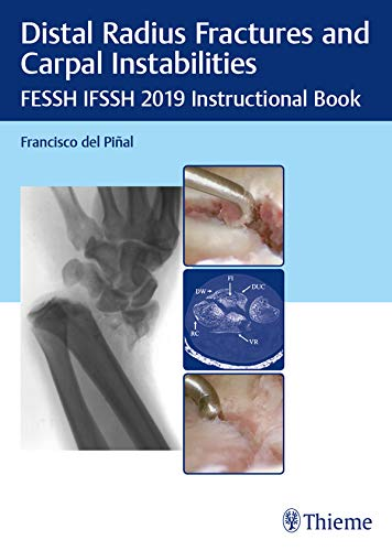 Distal Radius Fractures and Carpal Instabilities: FESSH IFSSH 2019 Instructional Book (English Edition)