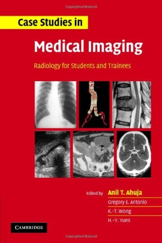 Case Studies in Medical Imaging: Radiology for Students and Trainees by A. T. Ahuja (Editor), G. E. Antonio (Editor), K. T. Wong (Editor), (7-Dec-2006) Paperback