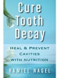 Image de Cure Tooth Decay: Heal And Prevent Cavities With Nutrition - Limit And Avoid Dental Surger