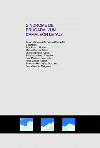 SINDROME DE BRUGADA: