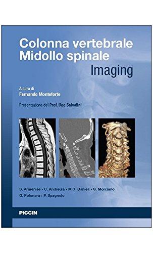 colonna vertebrale. midollo spinale. imaging
