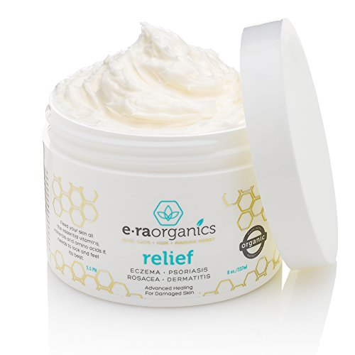 era-organics-psoriasis-eczema-cream-240ml-advanced-healing-non-greasy-treatment-with-organic-aloe-ve