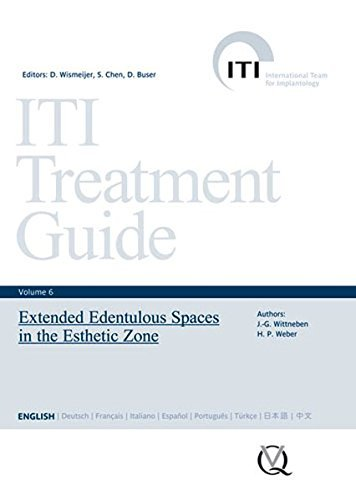 ITI Treatment Guide, Vol 6: Extended Edentulous Spaces in the Esthetic Zone (ITI Treatment Guides) by Daniel Wismeijer (2013-02-18)