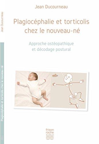 Plagiocéphalie et torticolis chez le nouveau-né par Ducourneau Jean