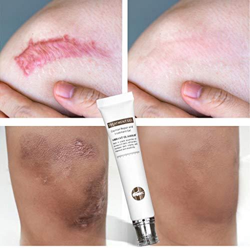 Gaddrt segni di trattamento dell'acne della cicatrice di rimozione della crema della cicatrice di riparazione del coccodrillo per il fronte o il corpo