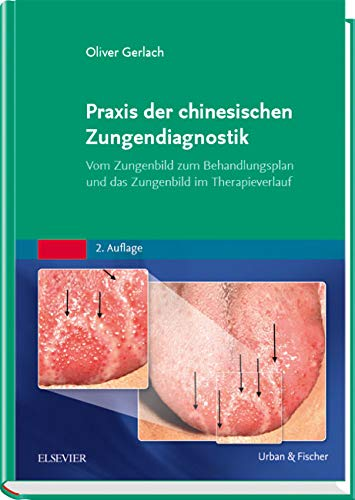 Praxis der chinesischen Zungendiagnostik: Vom Zungenbild zum Behandlungsplan und das Zungenbild im Therapieverlauf