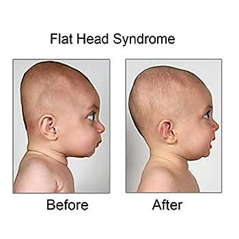 Babykissen Kopfform Babykopfkissen Baby-kissen Gegen Verformung Und Plattkopf Des Hinterkopfes Aus Memory Foam Orthopädisches Kissen (Pink) 3