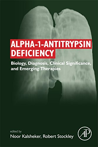 Alpha-1-antitrypsin Deficiency: Biology, Diagnosis, Clinical Significance, and Emerging Therapies (English Edition)
