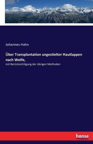 Über Transplantation ungestielter Hautlappen nach Wolfe,: mit Berücksichtigung der übrigen Methoden (Hautlappen)