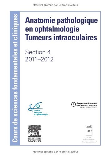 Anatomie pathologique en ophtalmologie : Tumeurs intraoculaires