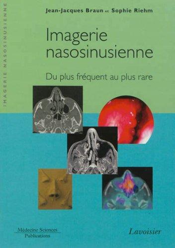 imagerie-nasosinusienne-du-plus-frquent-au-plus-rare
