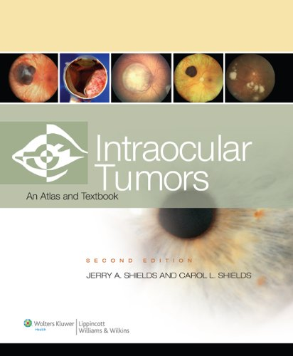 Intraocular Tumors: An Atlas and Text
