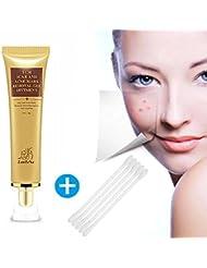 254ed120233c cicatrices et acné Mark retrait Gel crème Pommade, Diadia  Anti-inflammatoire et Rapairing,