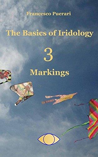 the-basics-of-iridology-3-markings-english-edition