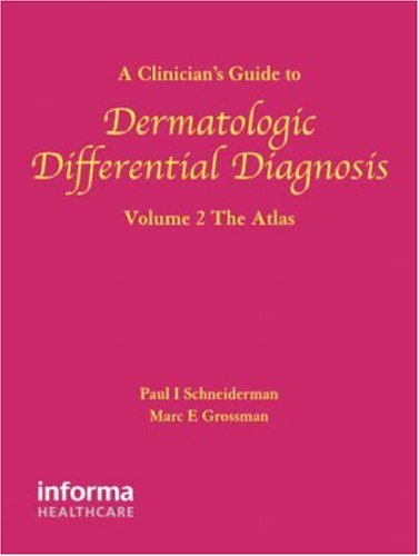 A Clinician's Guide to Dermatologic Differential Diagnosis, Volume 2: The Atlas: The Atlas v. 2 (Encyclopedia of Differential Diagnosis in Dermatology) by Paul Schneiderman (2006-08-02)