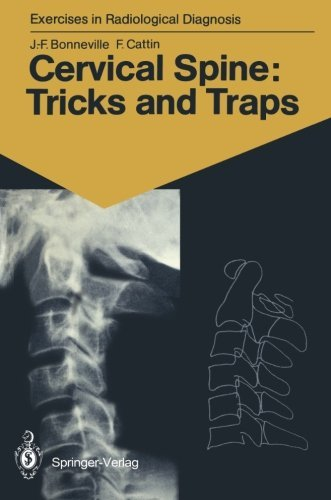 Cervical Spine: Tricks and Traps: 60 Radiological Exercises for Students and Practitioners (Exercises in Radiological Diagnosis) by Jean-Francois Bonneville (1990-06-05)