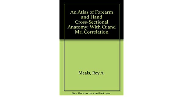 Buy An Atlas Of Forearm And Hand Cross Sectional Anatomy With Ct